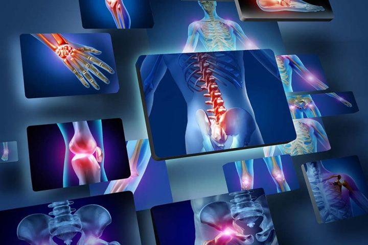 """15 maggio 2017 – """"Osteoporosi e artrosi"""" con la Dott.ssa Sara Barbieri"""